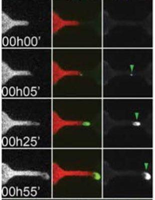 HeLa cells on microchannels