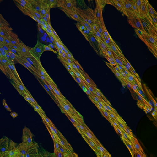 micropatterns cardiomyocytes