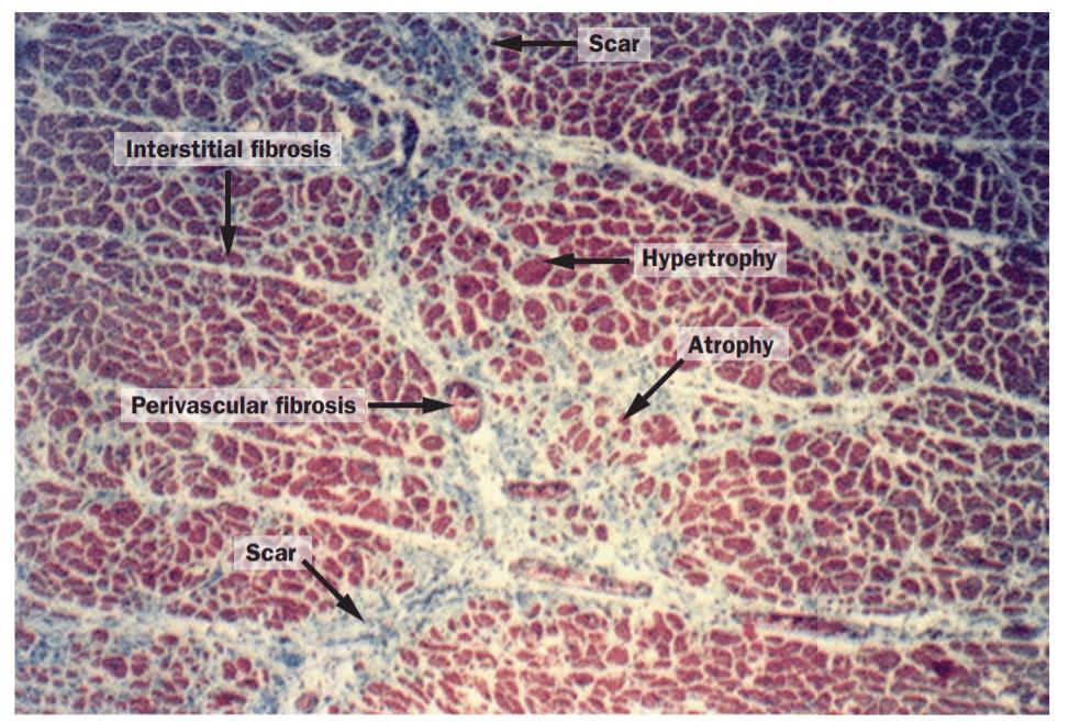 Myocardium in hypersensitive heart disease
