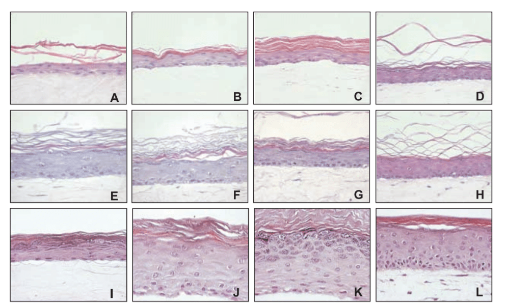 Reconstructed epidermis with different culture conditions