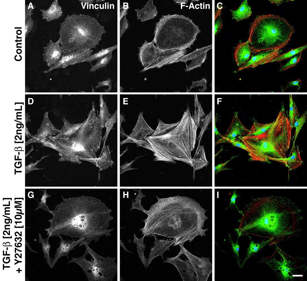 Fibroblast stimulation and TGF-beta pathway inhibition